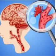 okvare možganov